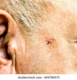Basal Cell Carcinoma on the face of older man before surgery - closeup
