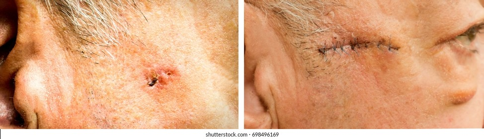 Basal Cell Carcinoma on the face of older man before and after surgery - closeup