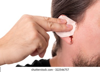 bearded man having ear bleeding, isolated on white, concept otitis media or otitis externe