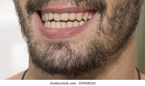 The bearded man smiles, showing bad teeth. The dentist's office.