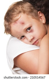 Beaten boy with shiner hugged by mother