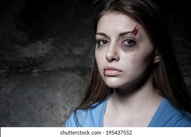 Beaten up woman. Young beaten up woman looking at camera while standing against dark wall