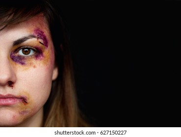 Beaten young woman with bruises on her face. Abuse, violence, close up portrait, half of the face