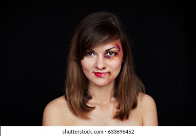 Beaten young woman with bruises on her face smiling. Abuse, violence concept. Half of the face with make up