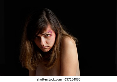 Beaten young woman with bruises on her face. Abuse, violence concept