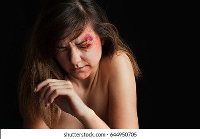 Beaten young woman with bruises on her face . Abuse, violence concept