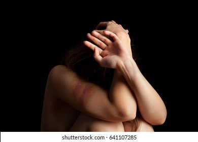 Beaten young woman with hands on her head trying to protect herself. Abuse, violence concept