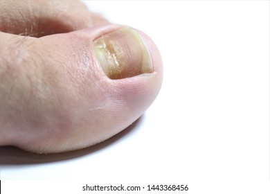 Beau's lines are deep grooved lines that run from side to side on the fingernail or the toenail.They may look like indentations or ridges in the nail plate. May be caused by a lack of Zinc / Calcium.