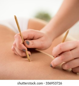 Beautician using acupuncture needles to reduce cellulite