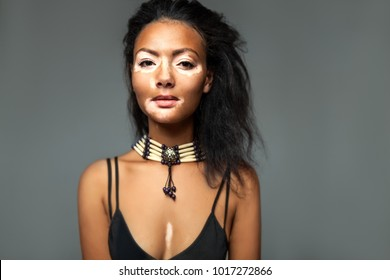 Beautiful African girl in studio with skin problems Vitiligo studio shooting