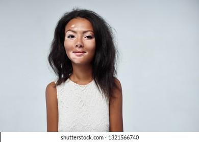Vitiligo Skin Images Stock Photos Vectors Shutterstock