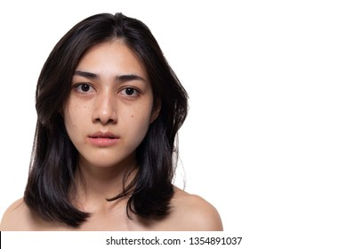 Beautiful asian woman gets freckles, blemish, pimple or acne and dull skin on her face. Charming beautiful young woman get problems of her skin. She looks unhappy. isolated on white, copy space