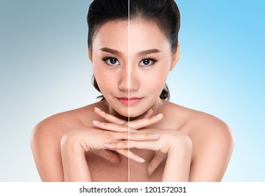 Beautiful asian young woman on blue background, beauty concept. retouch before and after.face divided in two parts, poor condition the skin in good condition