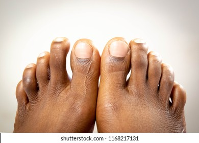Black Toe Nails Images, Stock Photos & Vectors | Shutterstock