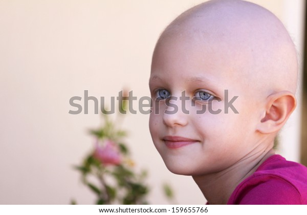 beautiful child with cancer and hair loss due to chemotherapy