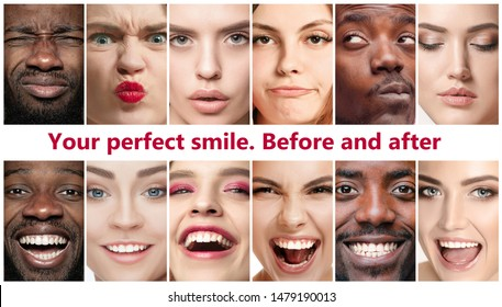 Beautiful close up male and female portraits. Concept of beauty, correction, treatment and teeth whitening. Braces, veneers, implantation, dentistry. Before and after. Colorful flyer for your