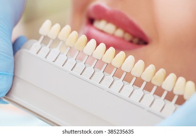Beautiful european woman smile with healthy teeth whitening. Dental care concept. Set of implants with various shades of tone