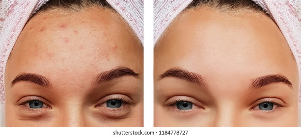 beautiful eye girl treatment, before and after procedures, acne