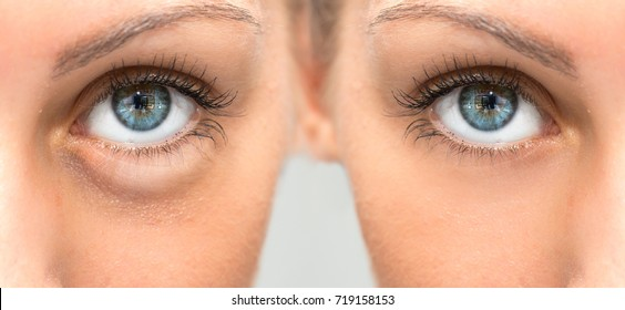 Beautiful female eye before and after blepharoplasy with and wit
