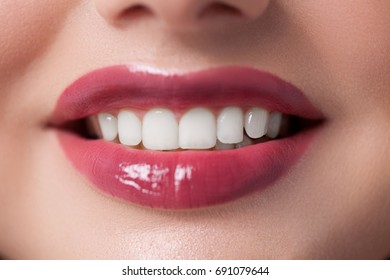 Beautiful female lips with shiny lipgloss make-up. Lips care and visage. Snow-white smile Red lips.Chubby lips.Stomatology and dental care.