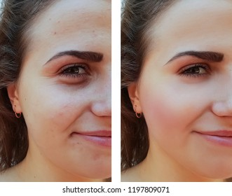 beautiful girl face wrinkles, acne before and after the procedure