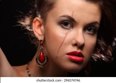 Vertical facial scars