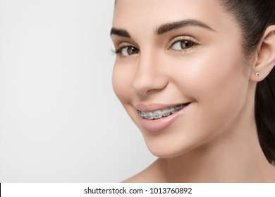 Beautiful girl smiling looking on a camera, white teeth with braces. Dental care. Beauty woman smile with orthodontic accessories. Cosmetic dentistry, orthodontics treatment.