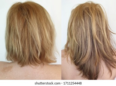 beautiful hair woman before and after growth