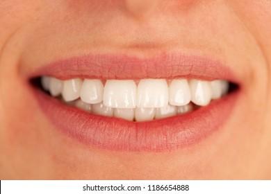 Beautiful healthy woman teeth