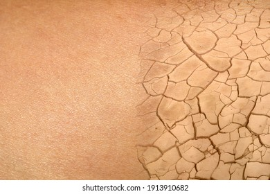 Beautiful healty skin under dehydrated. Dried skin concept