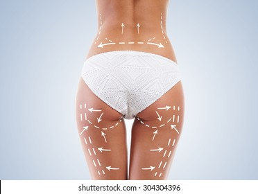 Beautiful legs with arrows on hips. Plastic surgery concept.