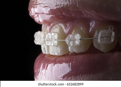 Beautiful macro shot of white teeth with aesthetics braces.