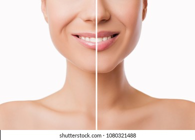 Beautiful plump Lips after filler injection collagen to increase the volume of the lips. Beauty concept. Female lips before and after augmentation procedure