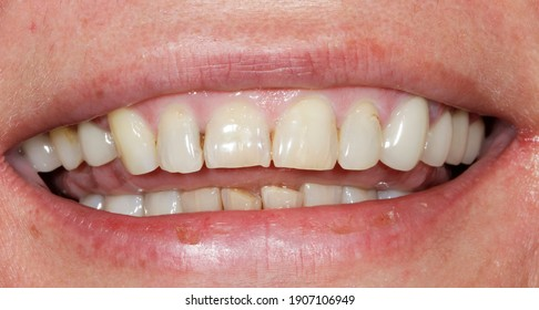 beautiful smile by press ceramic crown and venners