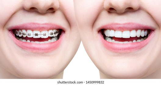 Beautiful smile with perfect teeth before and after braces. Isolated on white.