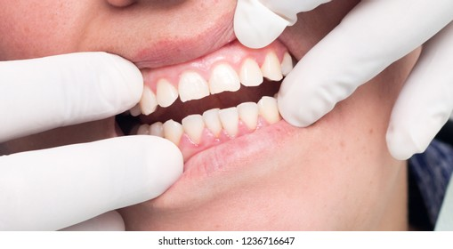 A beautiful smile starts with a good oral health.