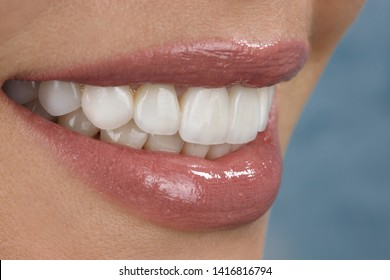beautiful smile and veneers of young woman close up