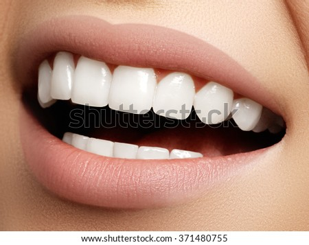 Beautiful smile with whitening
