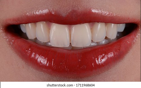 Beautiful smile young woman with whitening natural teeth. Dental photo. Perfect fashion lips makeup. Health happy female smile. Macro close-up shot of woman's mouth.