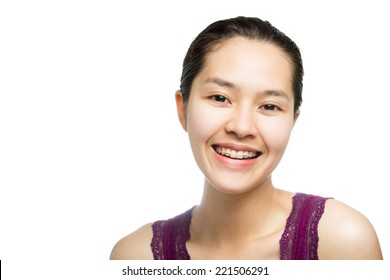 Beautiful smiling girl with retainer for teeth isolated on white background.