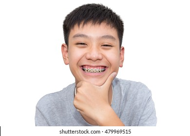 Beautiful smiling of handsome boy with brace dental on isolated background.