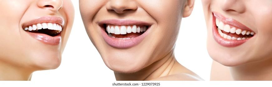 Schönes breites Lächeln junger frischer Frauen mit großen, gesunden weißen Zähnen einzeln auf weißem Hintergrund. Lächeln glückliche Frauen. Lachen des weiblichen Mundes. Zähne, Gesundheit, Erweißung, Prothesen und Pflege