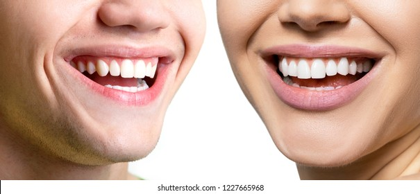 Beautiful wide smiles with great healthy white teeth of laughing man and woman. Smiling happy people. Laughing female and male mouths. Teeth health, whitening, prosthetics and care.