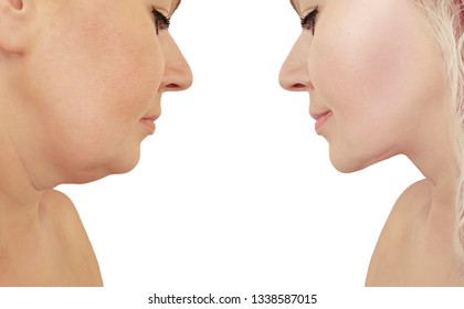 beautiful woman double chin lift before and after correction procedures