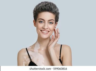Beautiful woman portrait. Skin care deffects, problem skin. Vitiligo