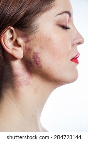Beautiful woman with real port-wine stain (birthmark) on her face, isolated on white background. converted from raw and edited with special care.