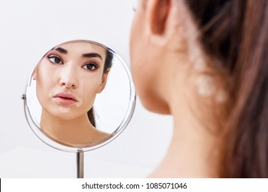 Beautiful woman with vitiligo looking in the mirror.
