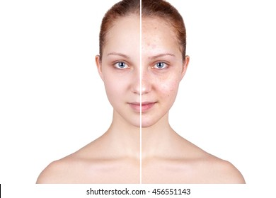 Beautiful woman's portrait isolated on white background, before and after retouch, skin care.