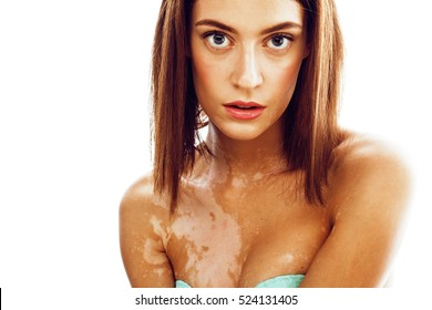 beautiful young brunette woman with vitiligo disease close up isolated on white positive smiling, model problems concept, bad tan problem