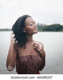 beautiful young brunette woman with vitiligo disease with morning lake on the background